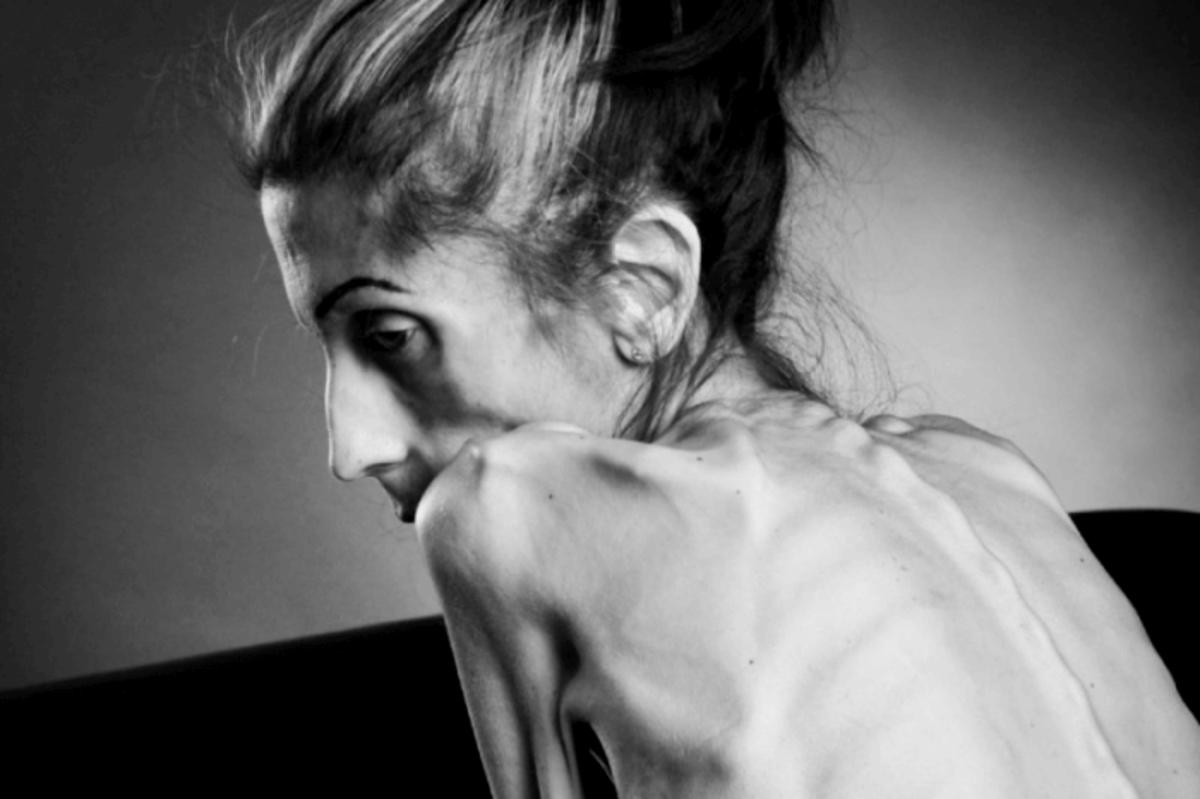 Anorexia- A Silent Killer