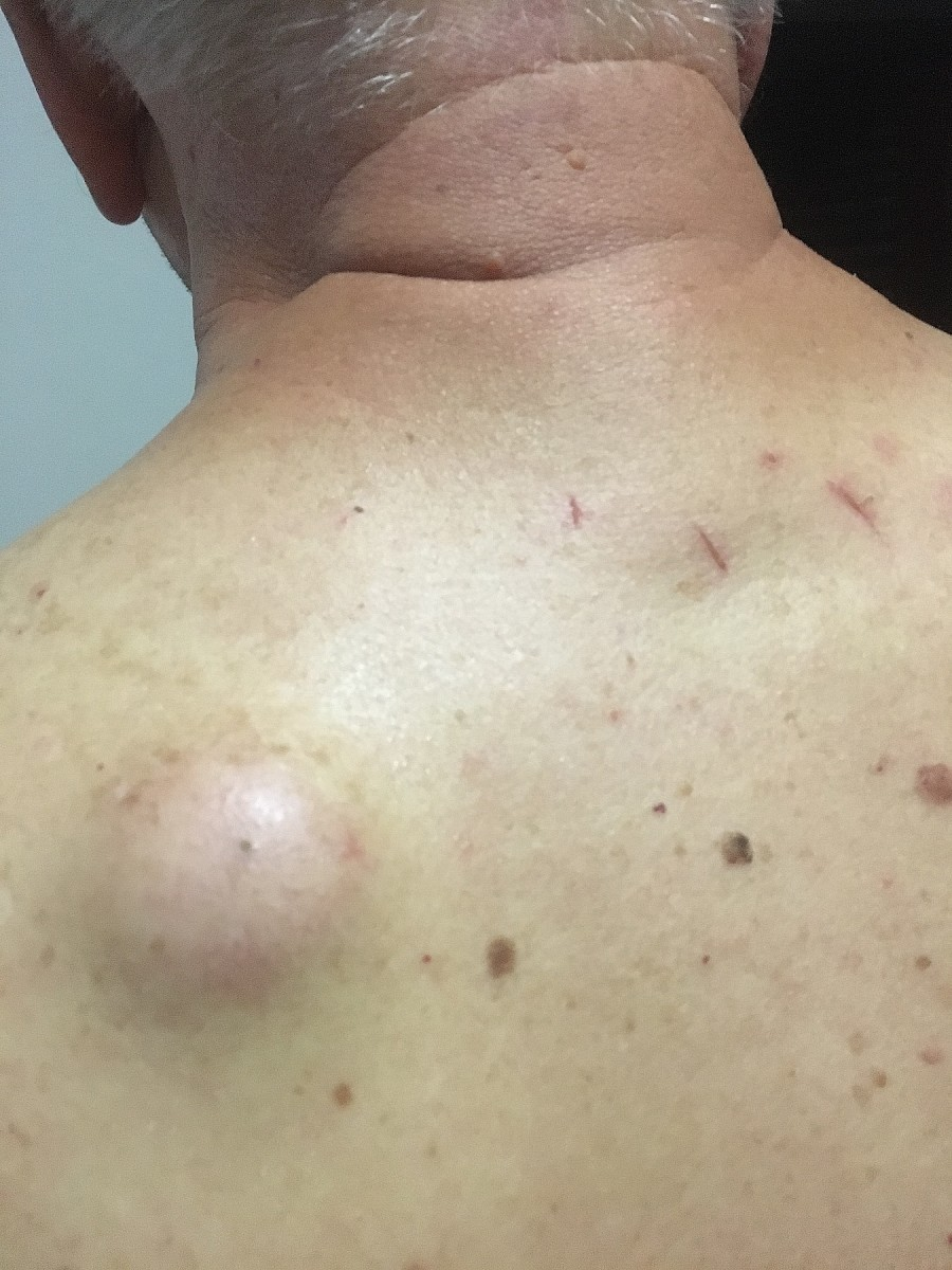 Treatment for My Sebaceous Cyst
