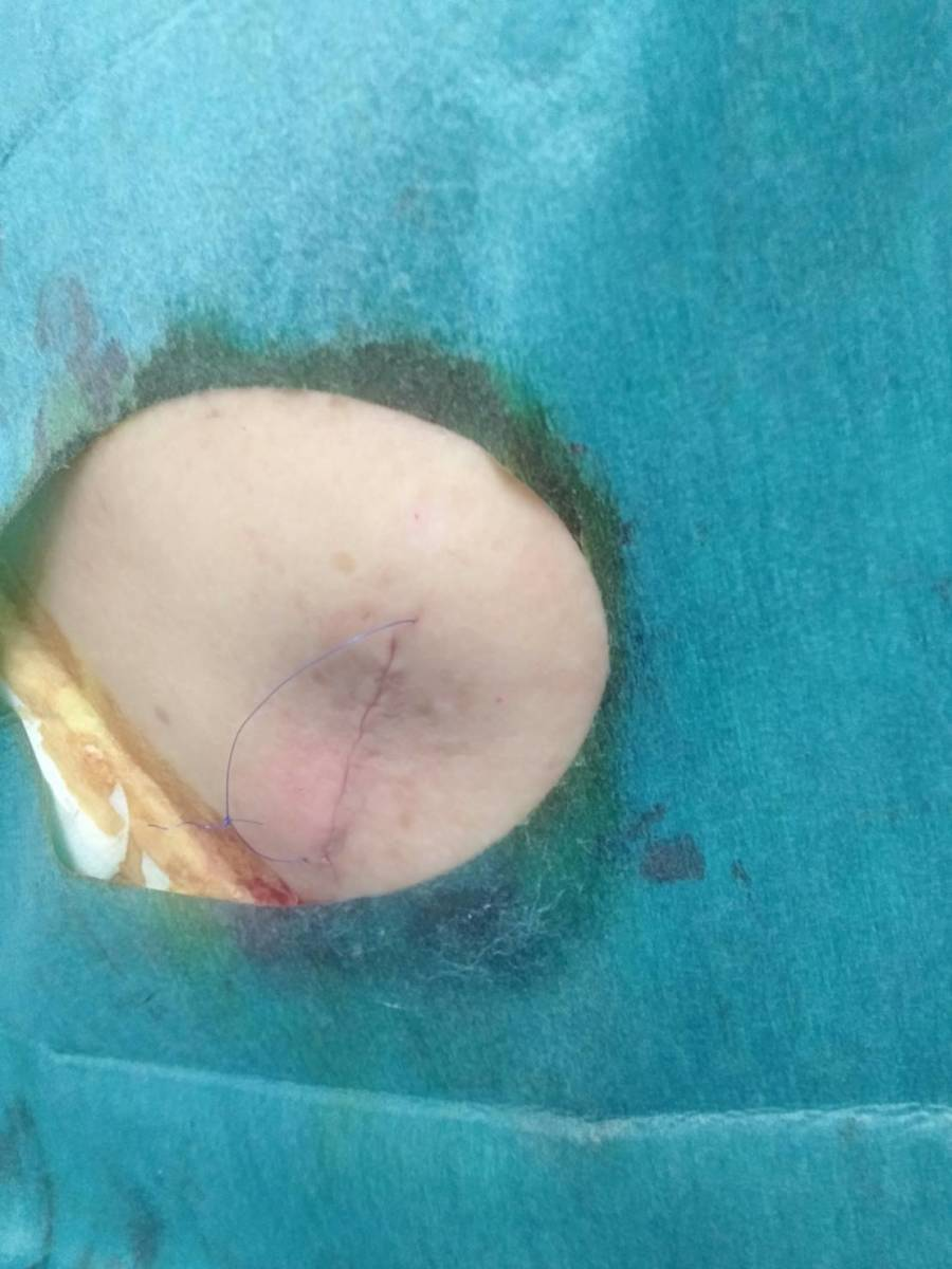 Following Excision of a Back Sebaceous Cyst