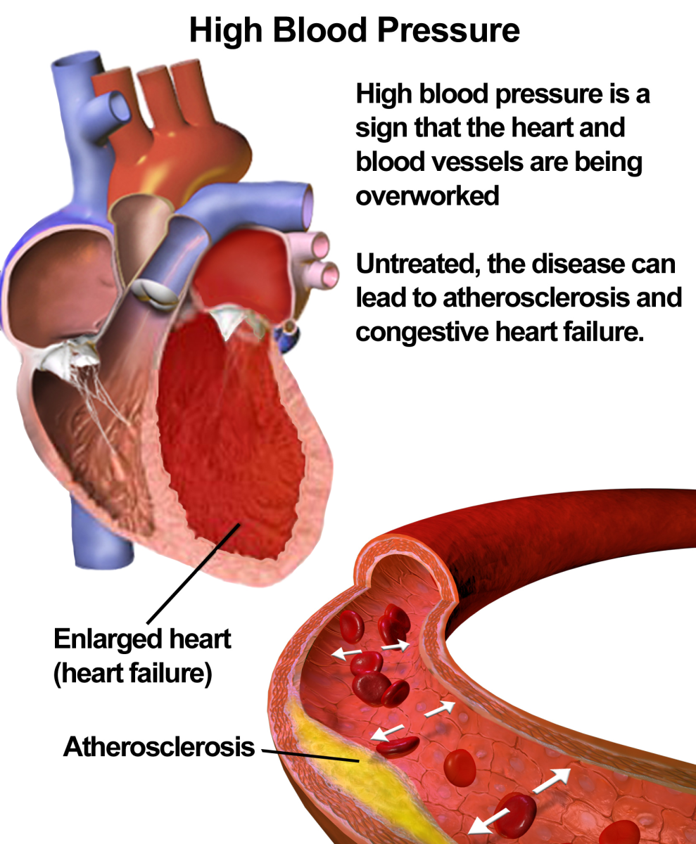 How to Reduce High Blood Pressure and Avoid White Coat Syndrome