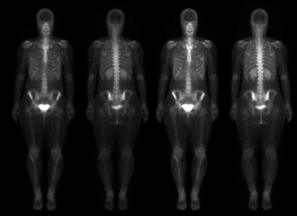 Bone scan of the author in 2011.