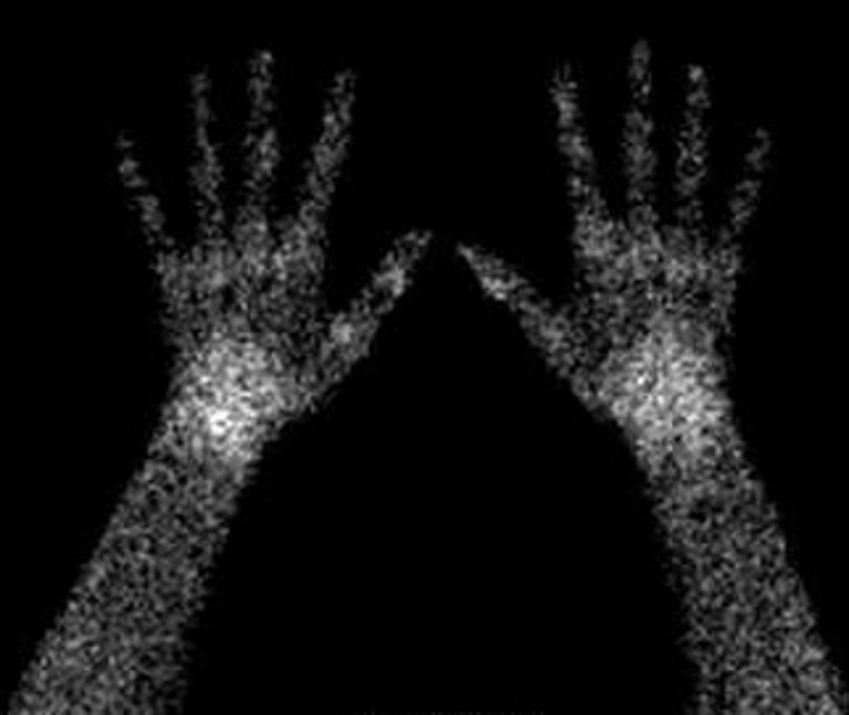 Scan of the author's hands showing areas of inflammation peaking in wrists and some finger joints.