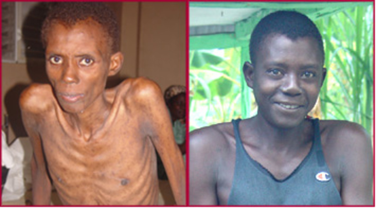 HIV infected person before and after antiretroviral therapy.