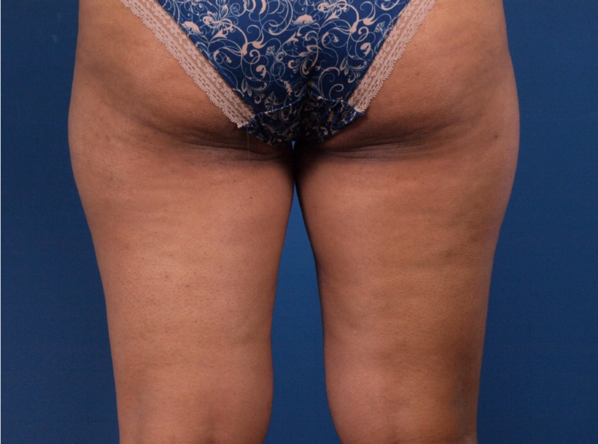 What Foods Cause Cellulite