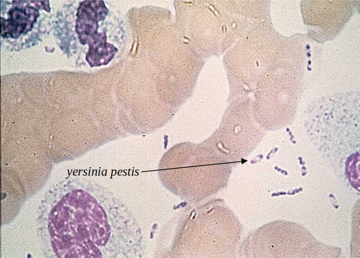 The bacteria causing bubonic plague under microscope, discovered 500+ years after black death