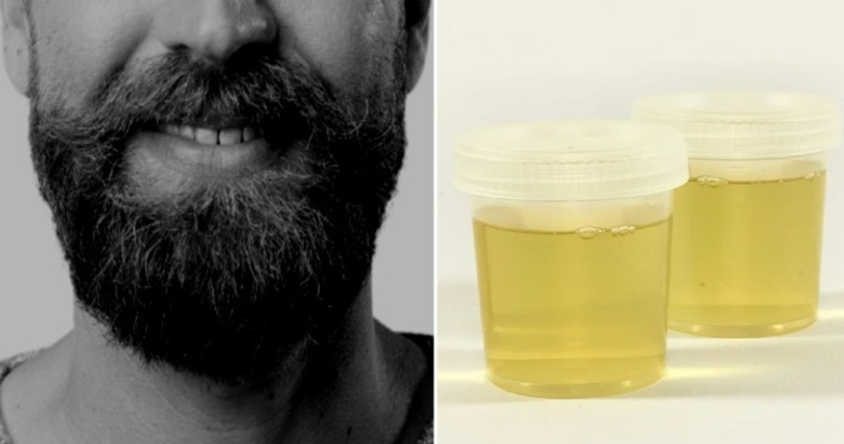 The Romans used urine for whitening teeth