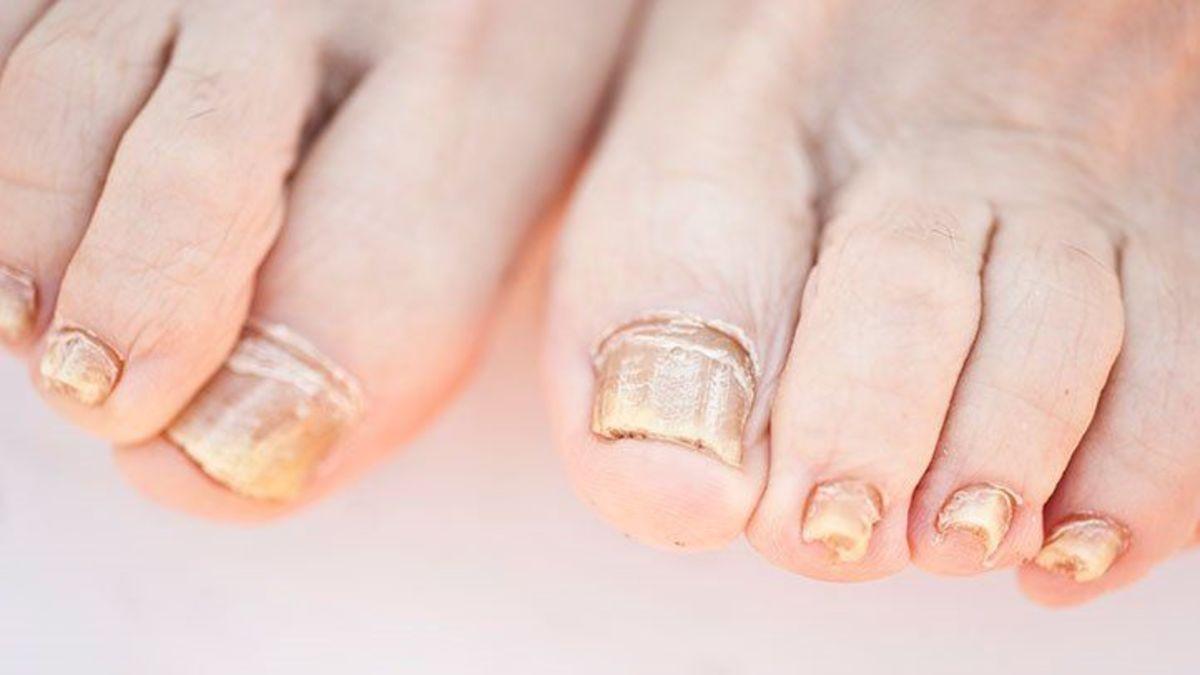 White fungus impact toenail