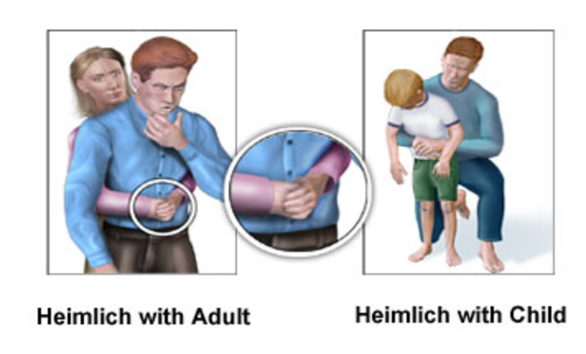 Heimlich Maneuver on an adult and on a child