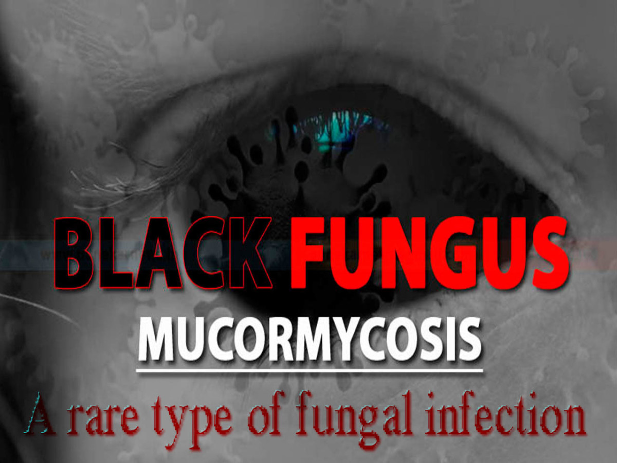 The Black Fungus symptoms have now added to the panic bucket