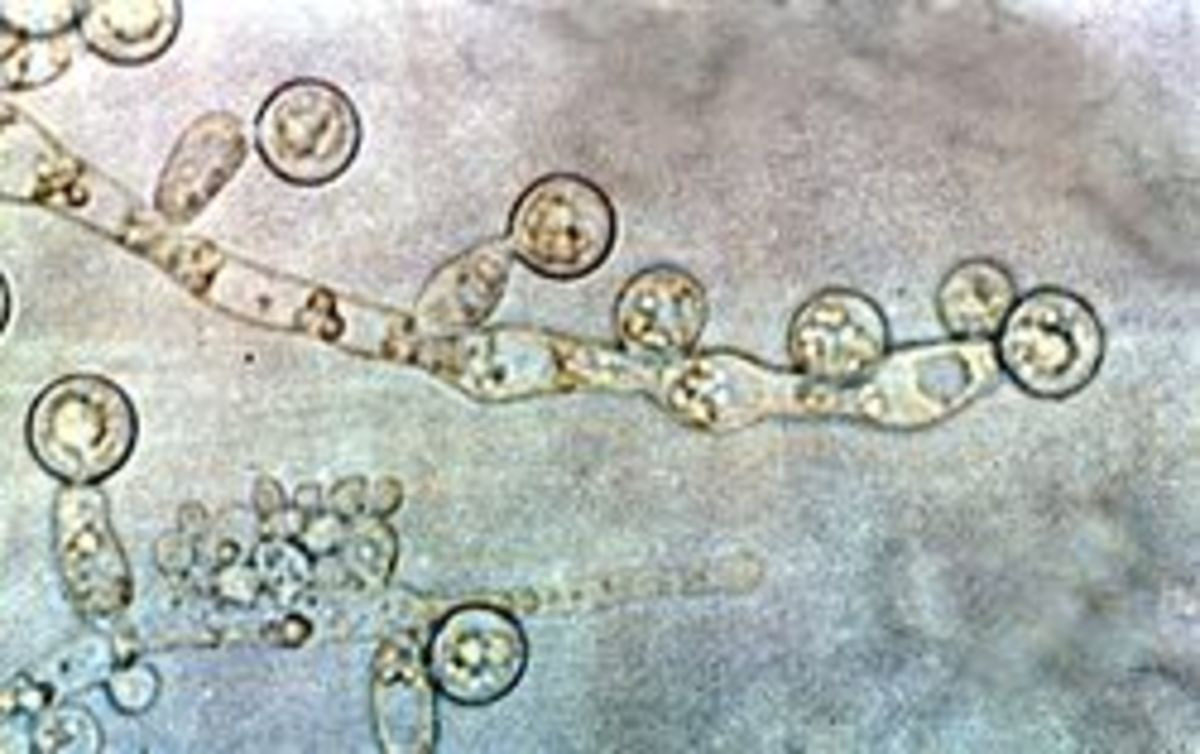 Candida albicans