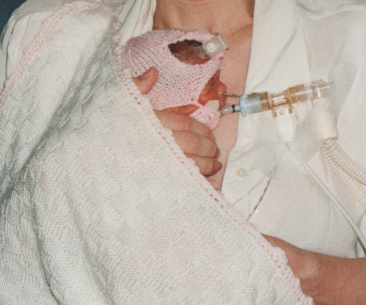 This photo shows a very premature baby on a ventilator.