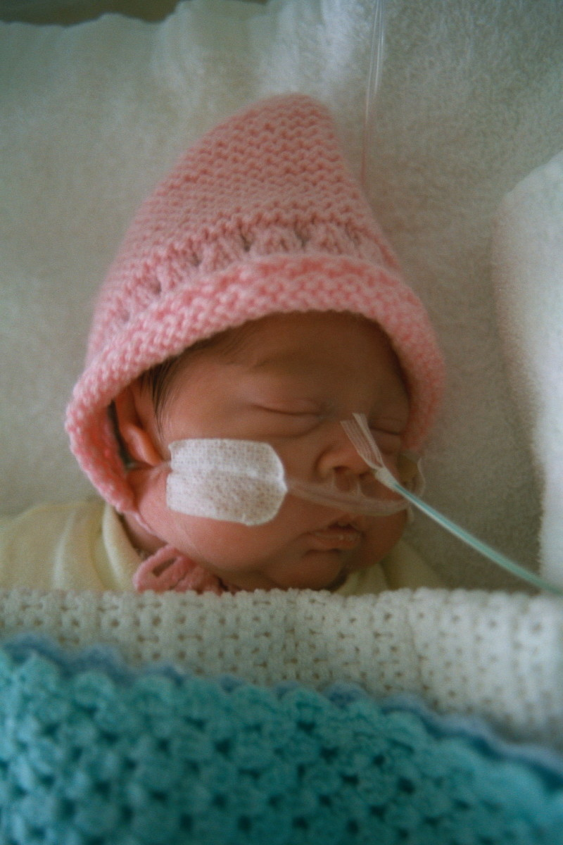 This baby receives oxygen through nasal prongs taped to her face. On admittance to hospital it is more likely a mask will be used instead.