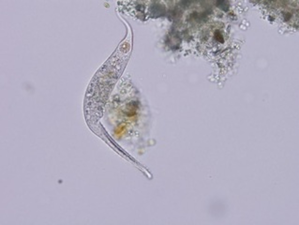 Ciliated Protozoa tentatively identified as Dileptus anser using Covich's Ecology and Classification of North American Freshwater Invertebrates