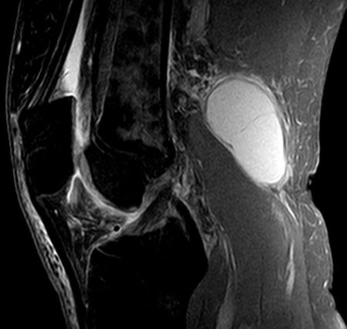 Baker cyst MRI