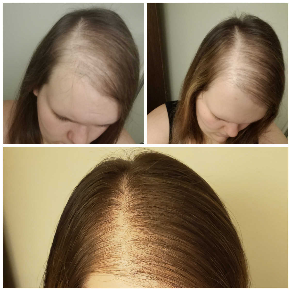 hair-loss-in-young-women