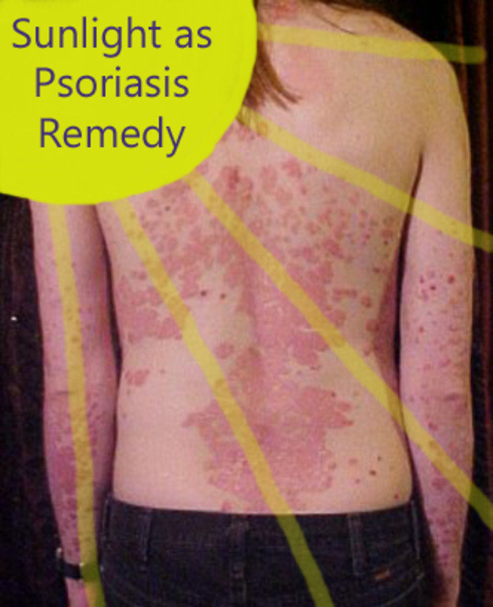 Psoriasis on back and arms