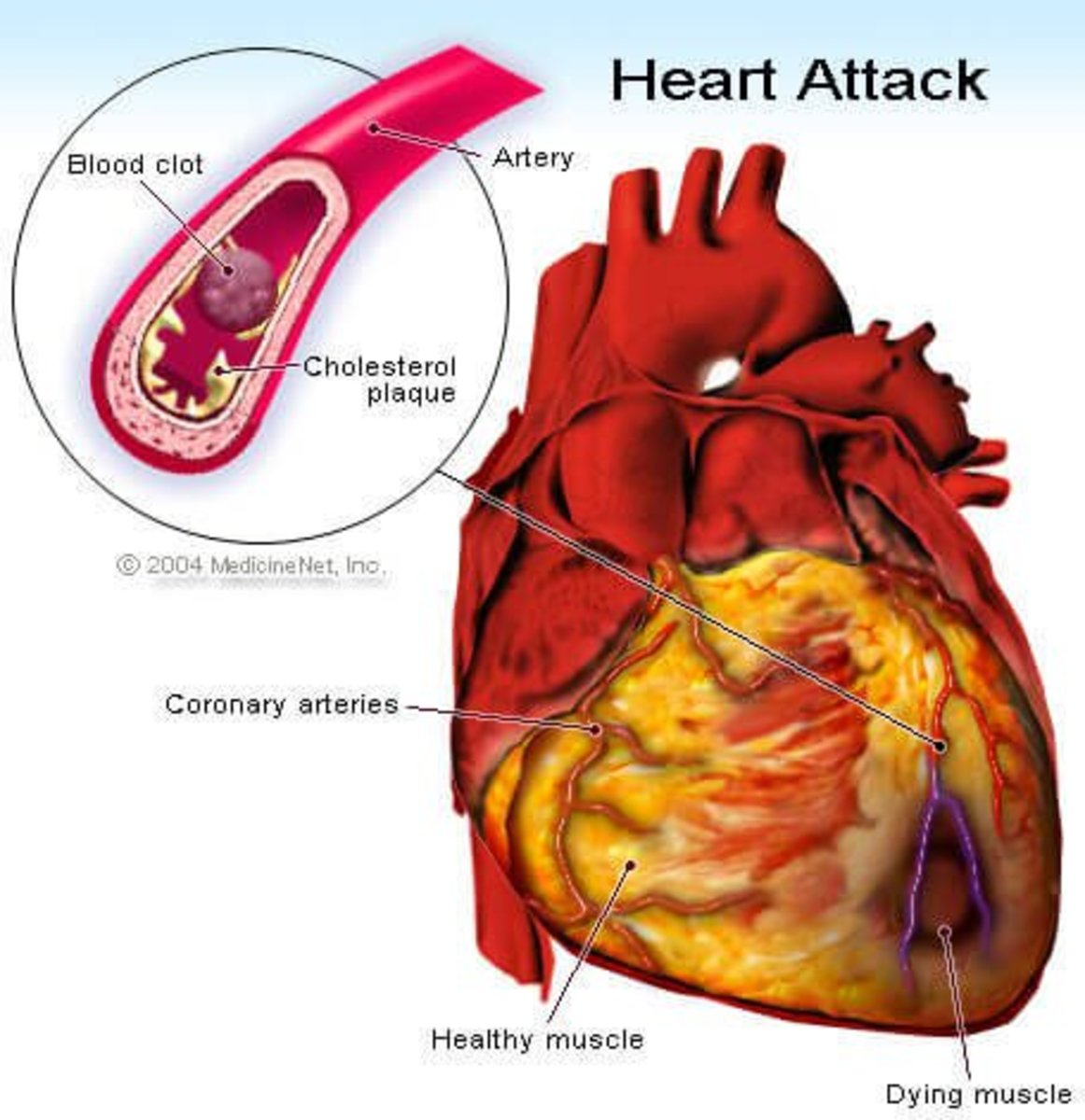 Amazing Heart Transplant