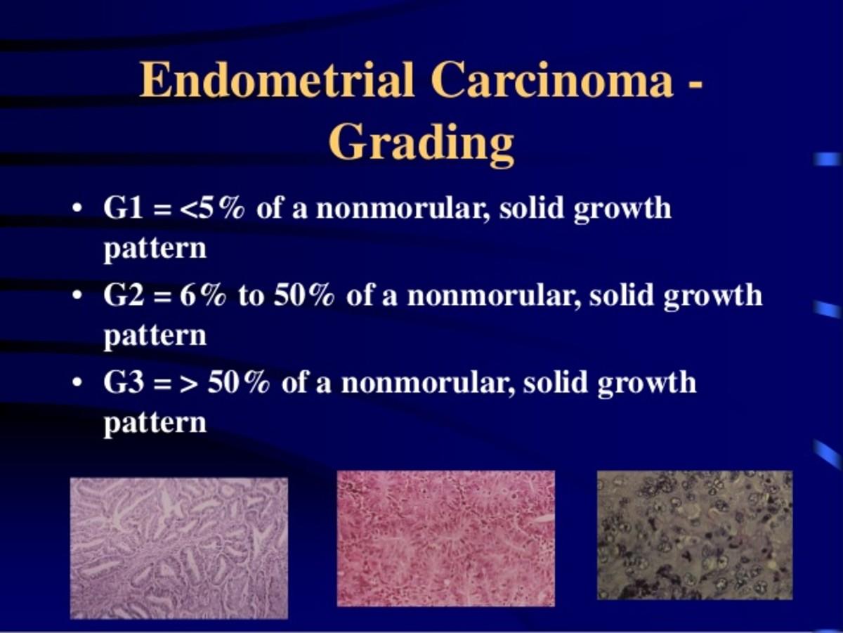 surviving-endometrial-cancer