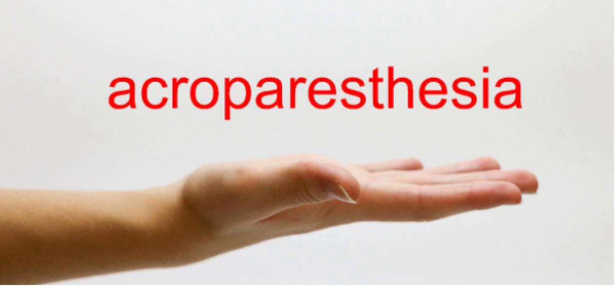 acroparesthesia