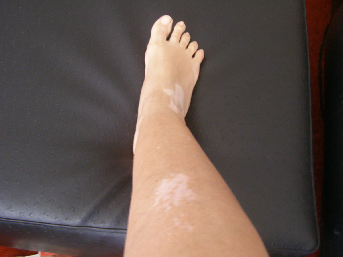 Leg showing vitiligo patches. Since this photo was taken the skin on my leg is now almost all white.