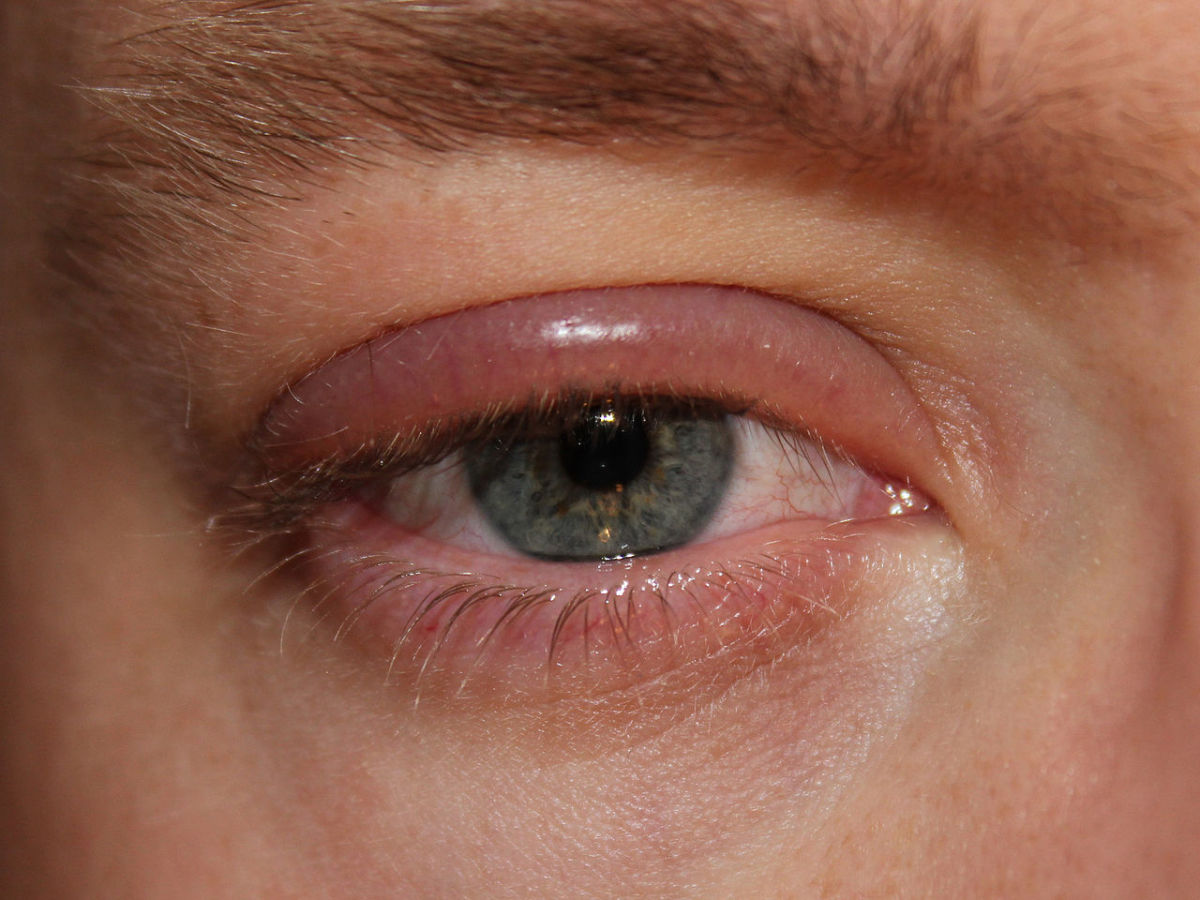 Eyelid swelling typical of blepharitis