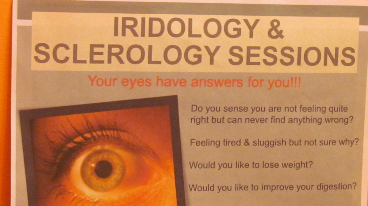 The flyer and poster displayed in Wendy Fulford's office which reveals what is included in iridology and sclerology sessions.