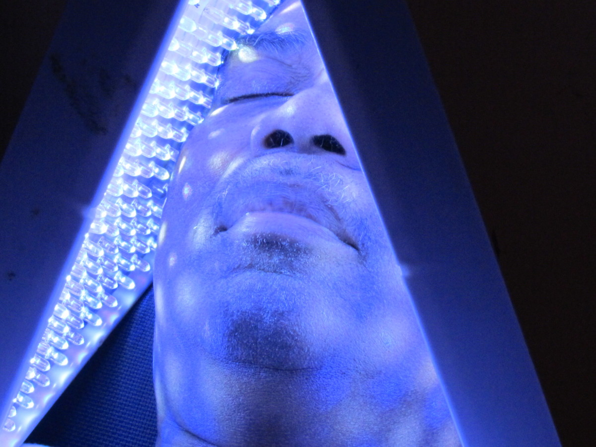 A specific Light therapy was used on this client to address a particular health concern.