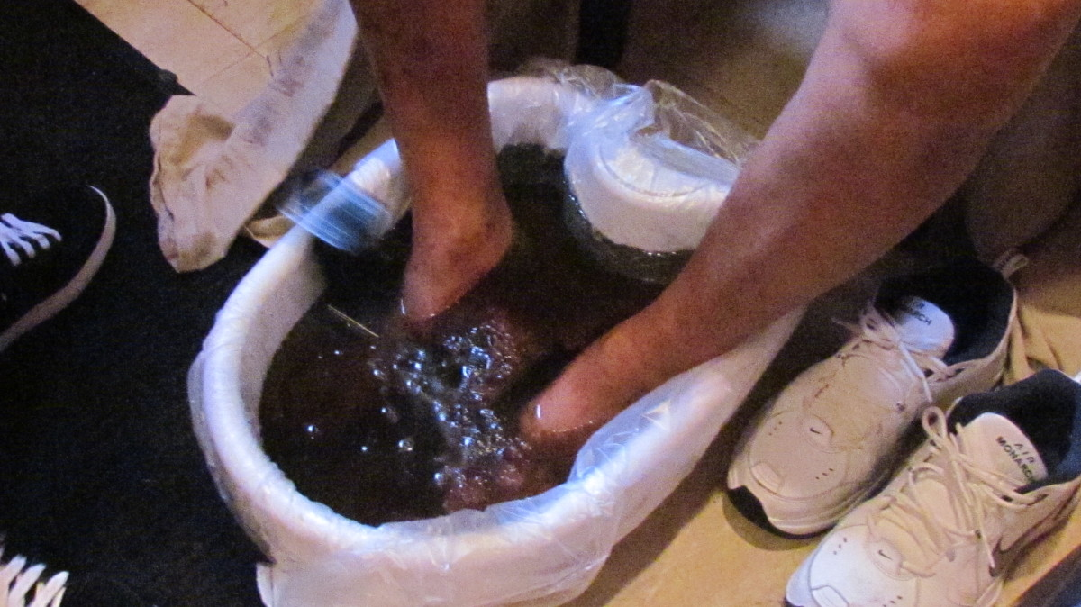 After a foot cleansing this is what the water revealed through the detoxing of his system.