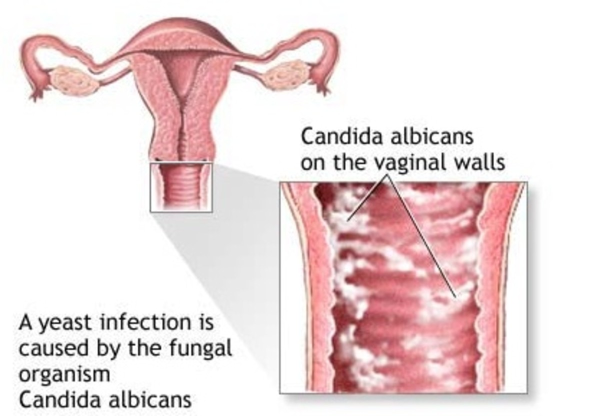 home-remedies-yeast-infections