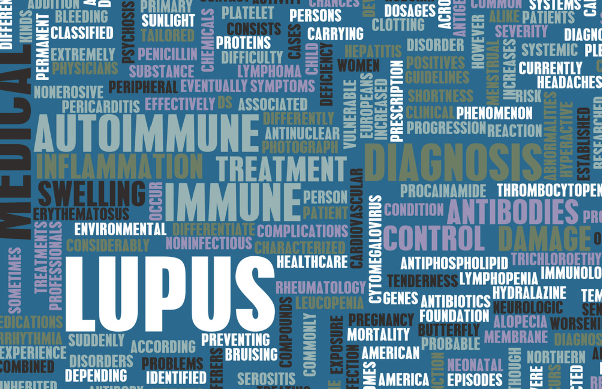Questions You Need To Ask Your Doctor About Your Lupus Diagnosis
