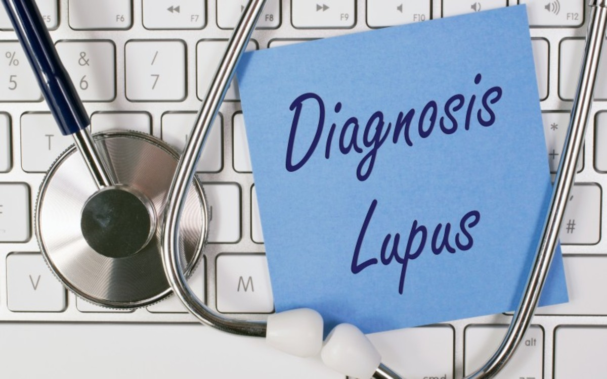 Questions You Need To Ask Your Doctor About Your Lupus Diagnosis.