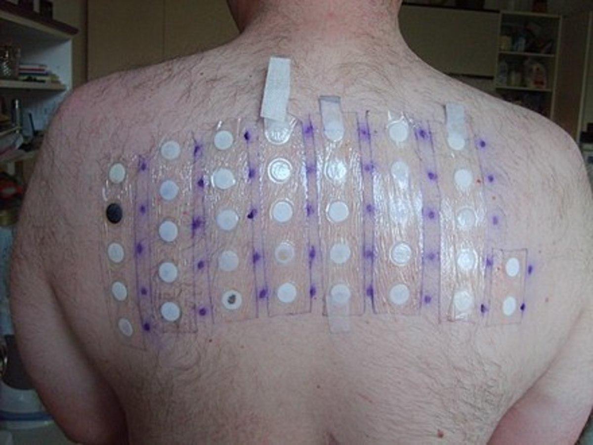 Epikutanni test - allergy test Wikipedia.com
