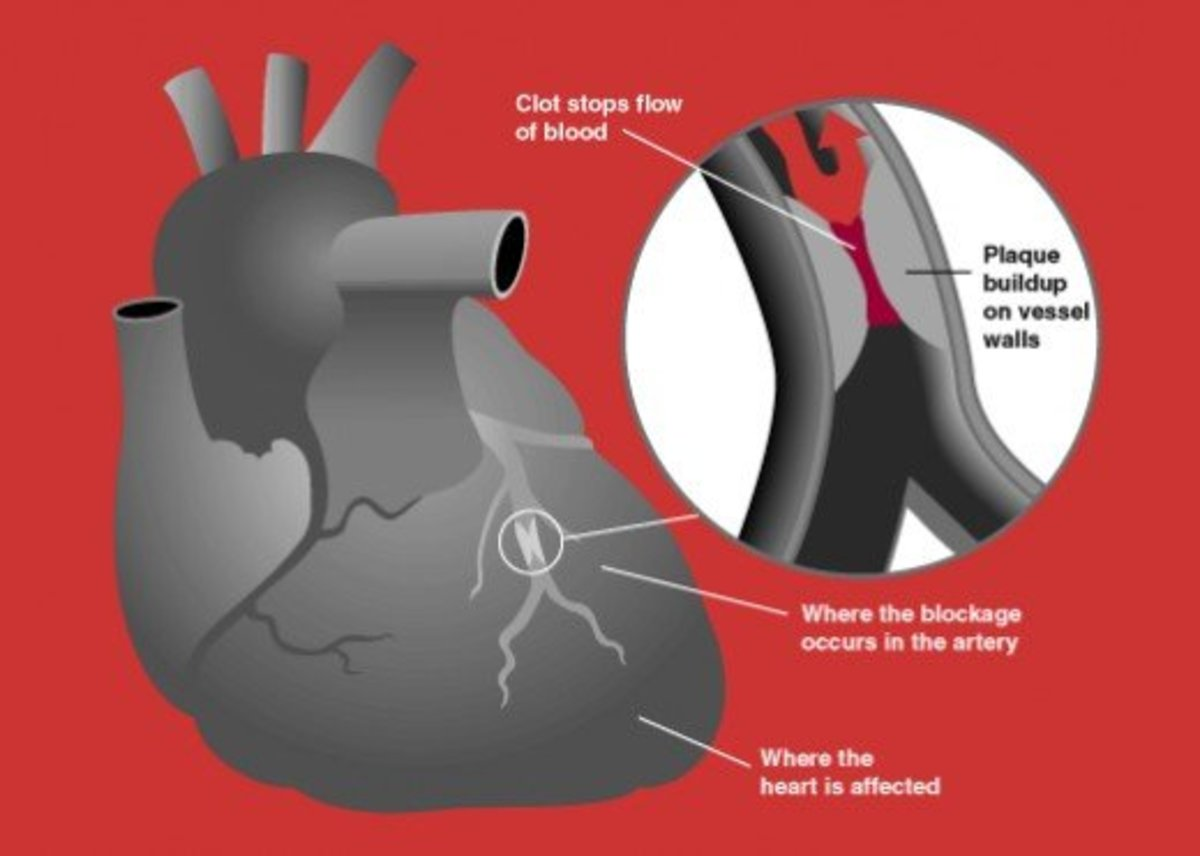 heart-attack-early-signs