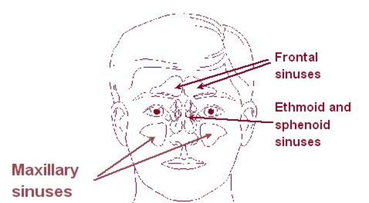all-natural-sinus-headache-and-allergy-relief