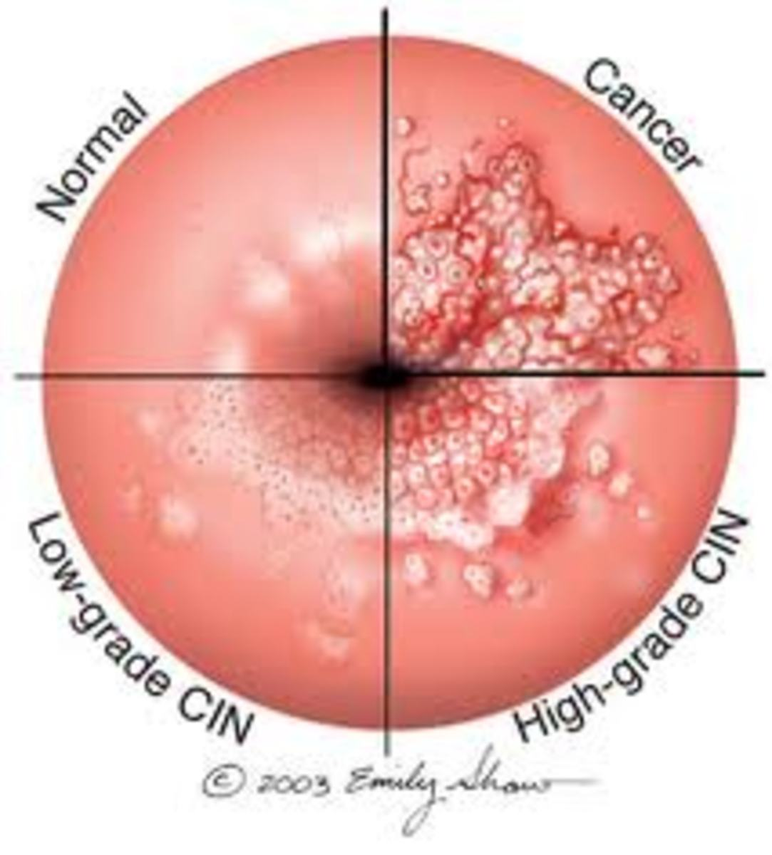 Effects of HPV on the cervix