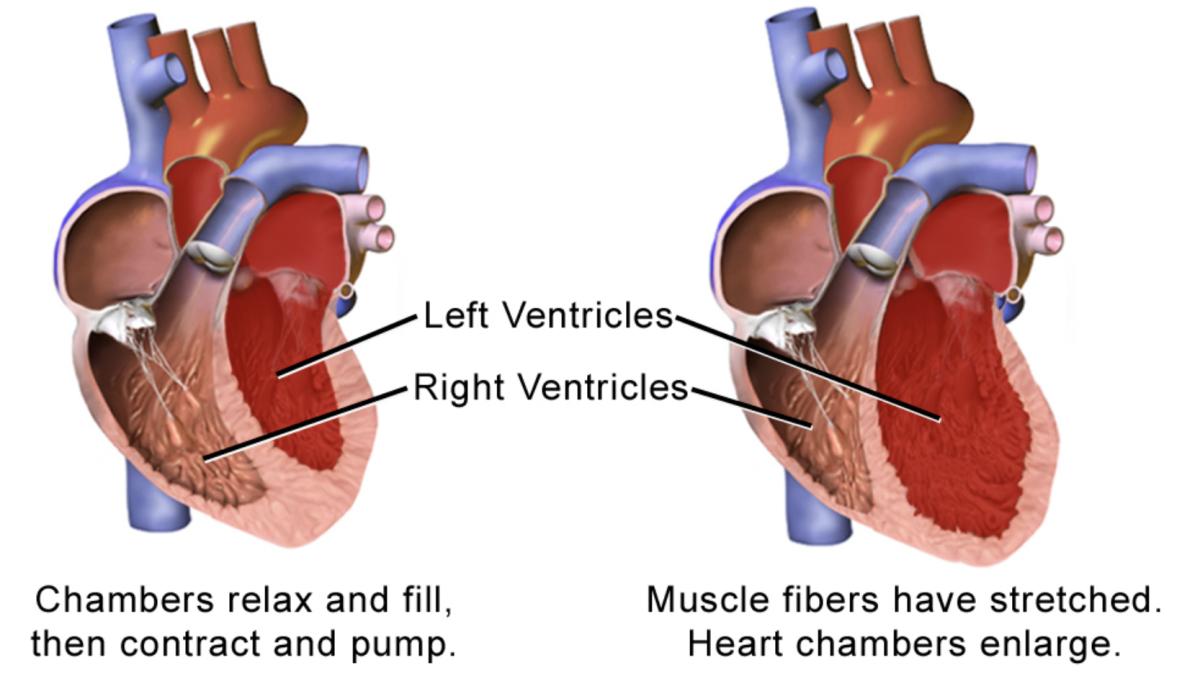 5 Best Ways to Mend a Broken Heart