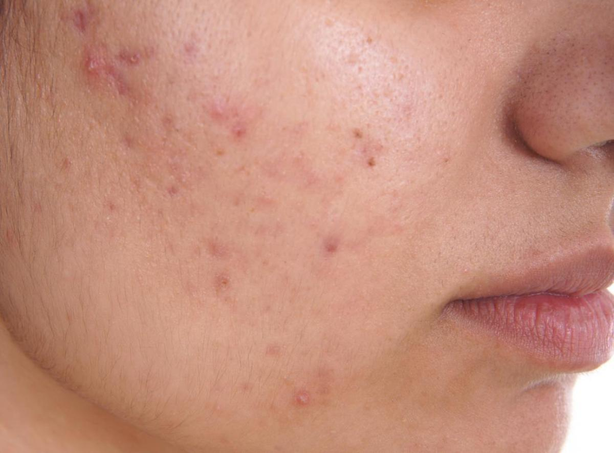 Top 10 Acne Causes, Prevention & Tips