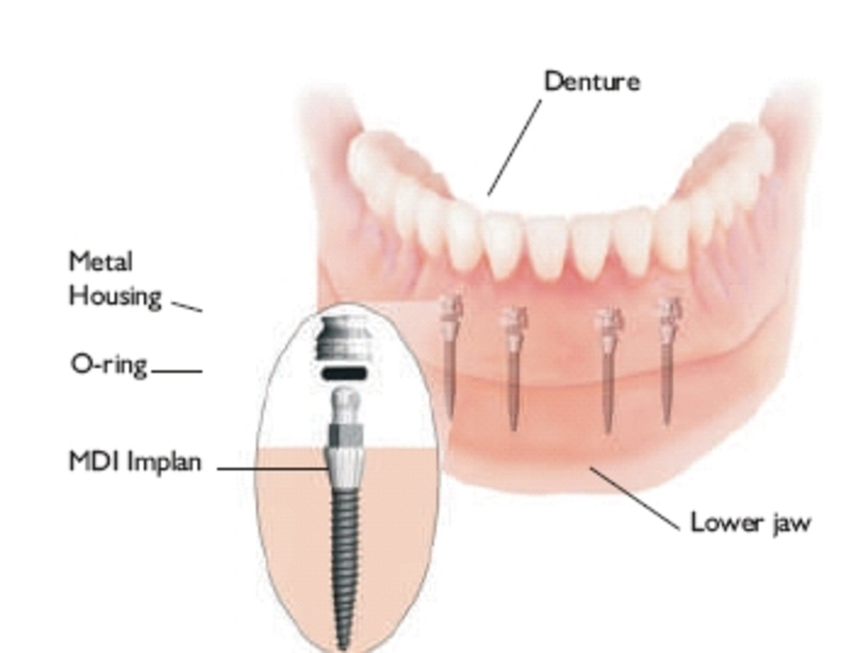 Mini Dental Implants & Cost