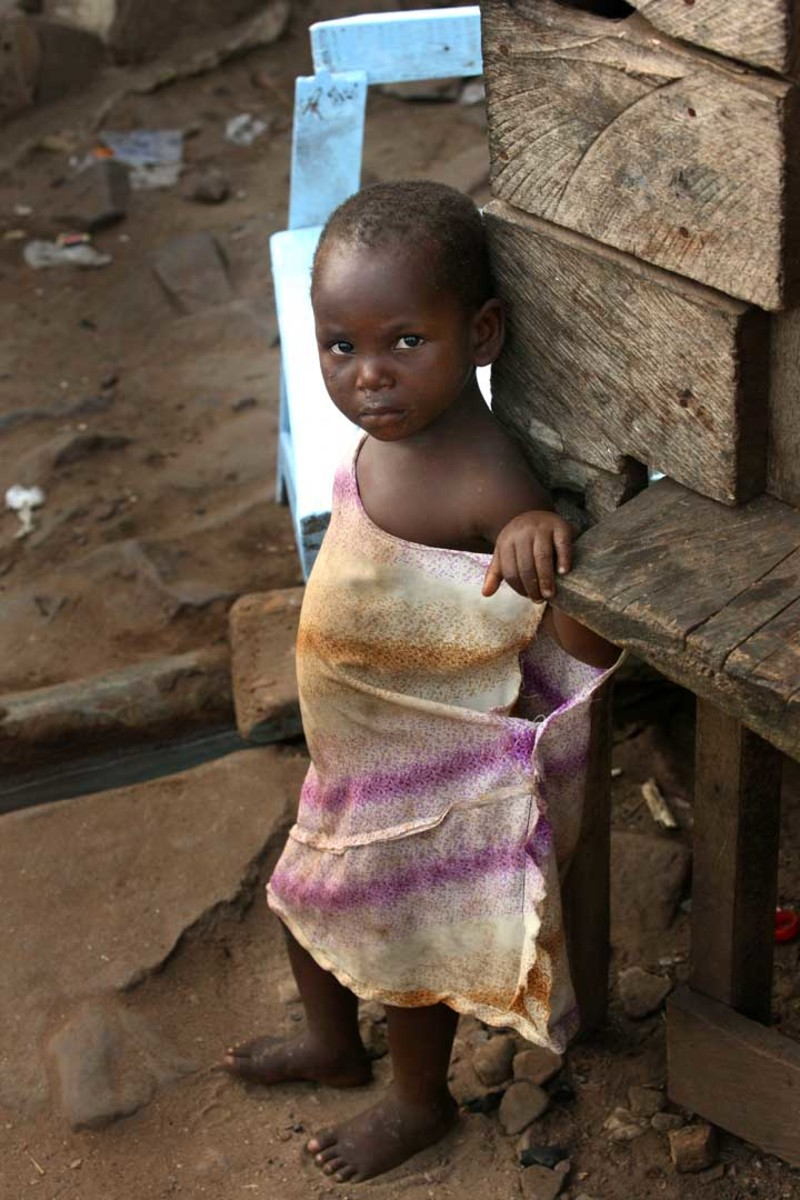 Many children in the world live in poverty and unsanitary conditions.