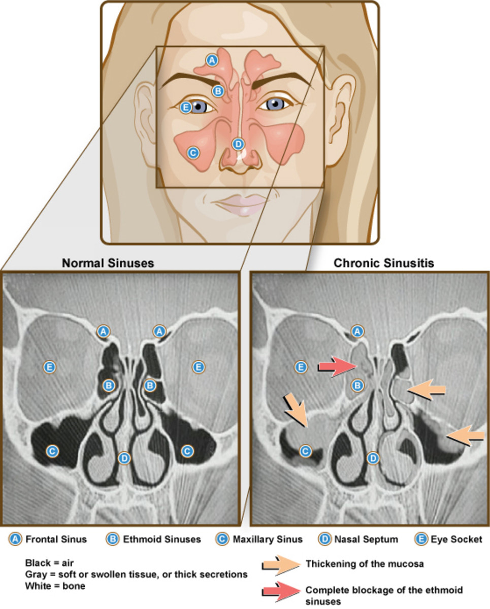 effective-home-remedies-to-prevent-the-risk-of-nasal-or-sinus-infection-sinusitis