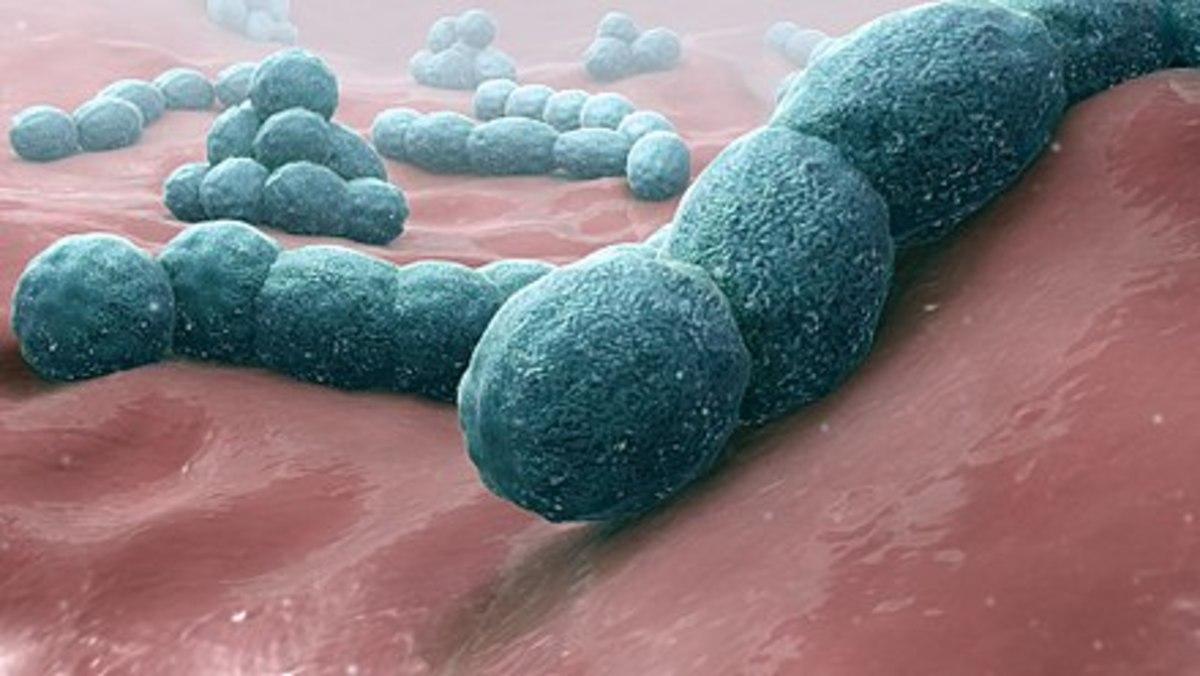 Streptococcus pneumoniae—a causative bacteria of meningitis