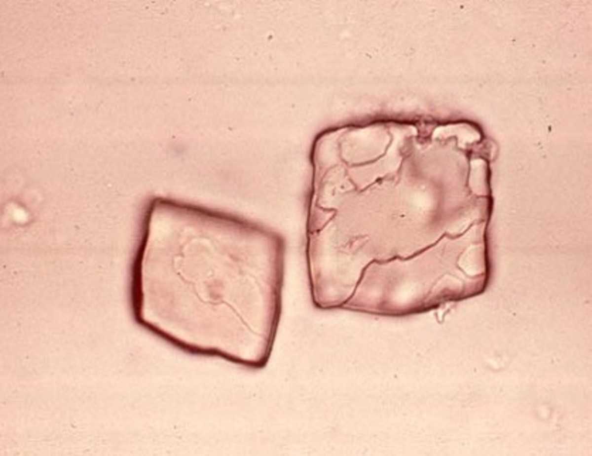 Close-up of uric acid