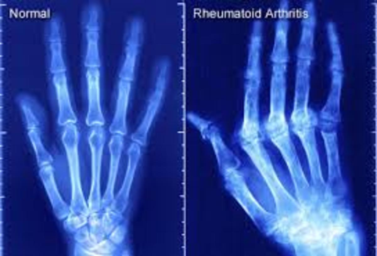 Rheumatoid Arthritis-Conventional and Natural Treatments