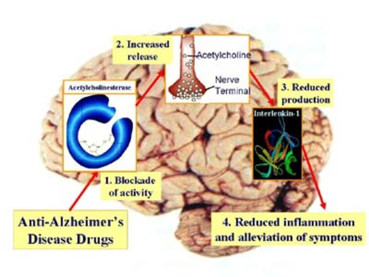 Alzheimers-A Mean Disease