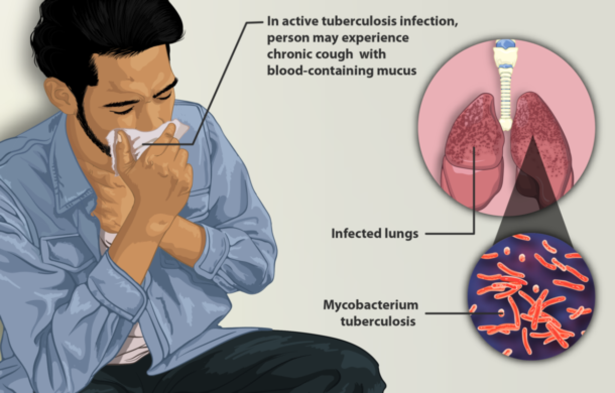 Tuberculosis (TB) - a Serious Infection
