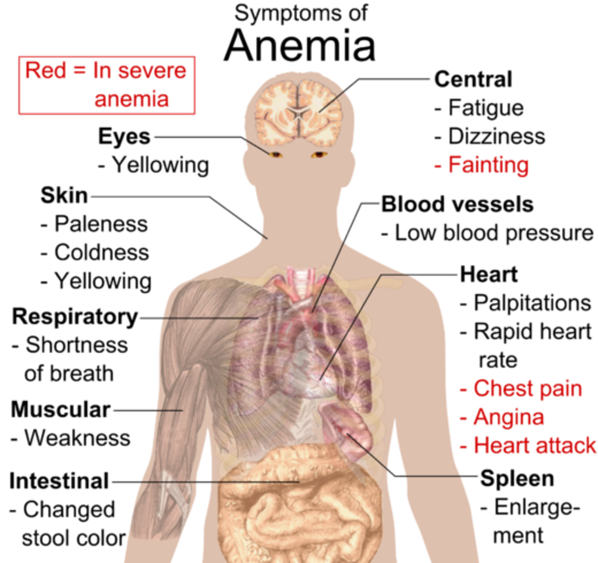 types-of-anemia-and-symptoms