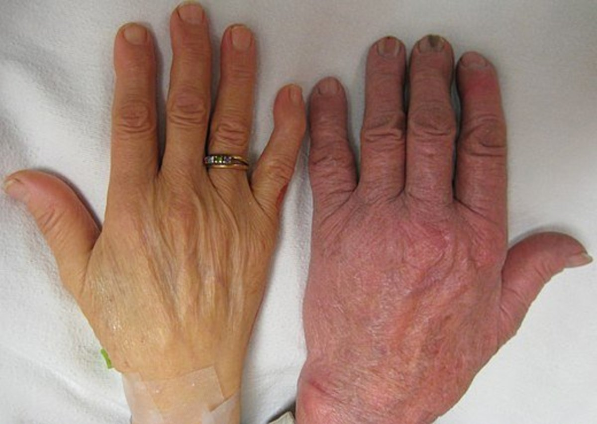 """""""The hand of a person with severe anemia (on the left) compared to one without (on the right)."""""""