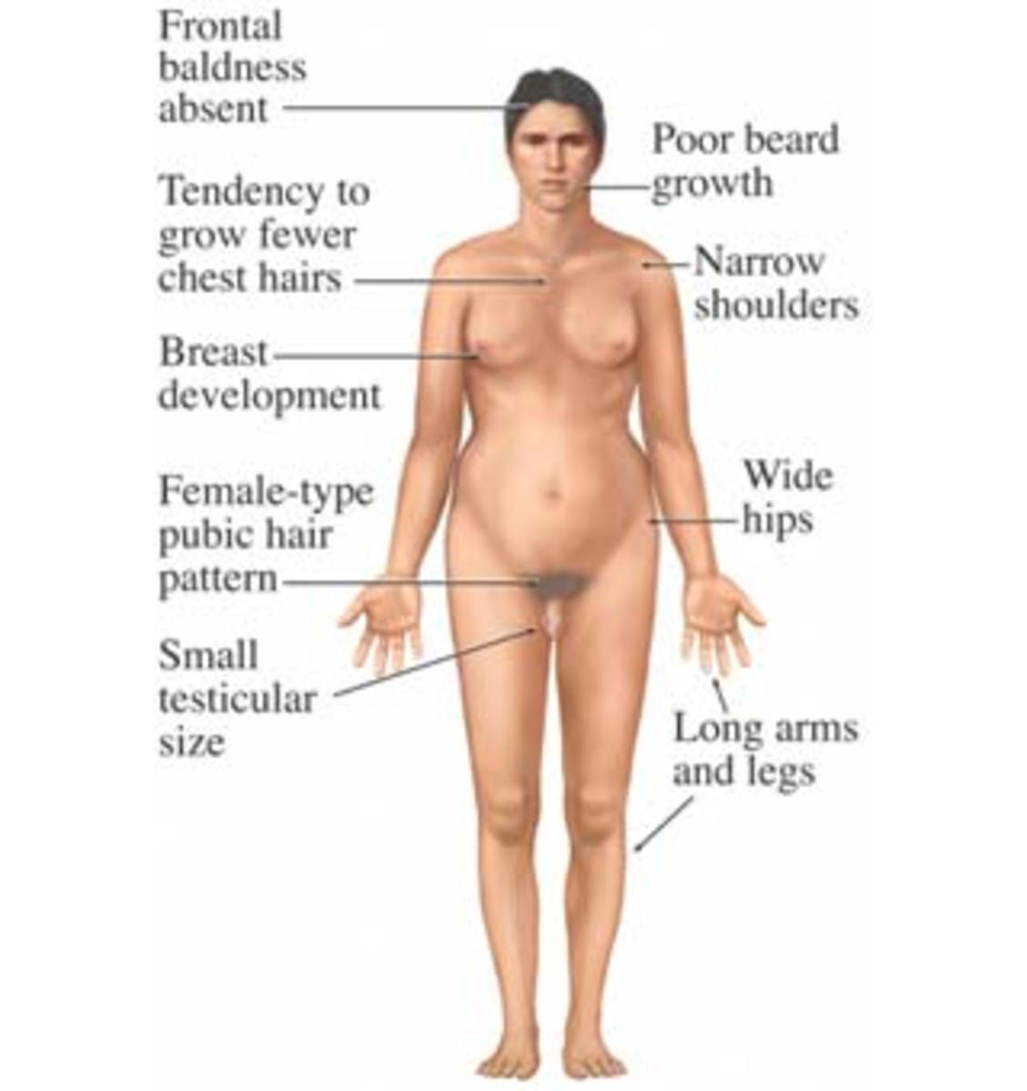 Human female sexual developement photos