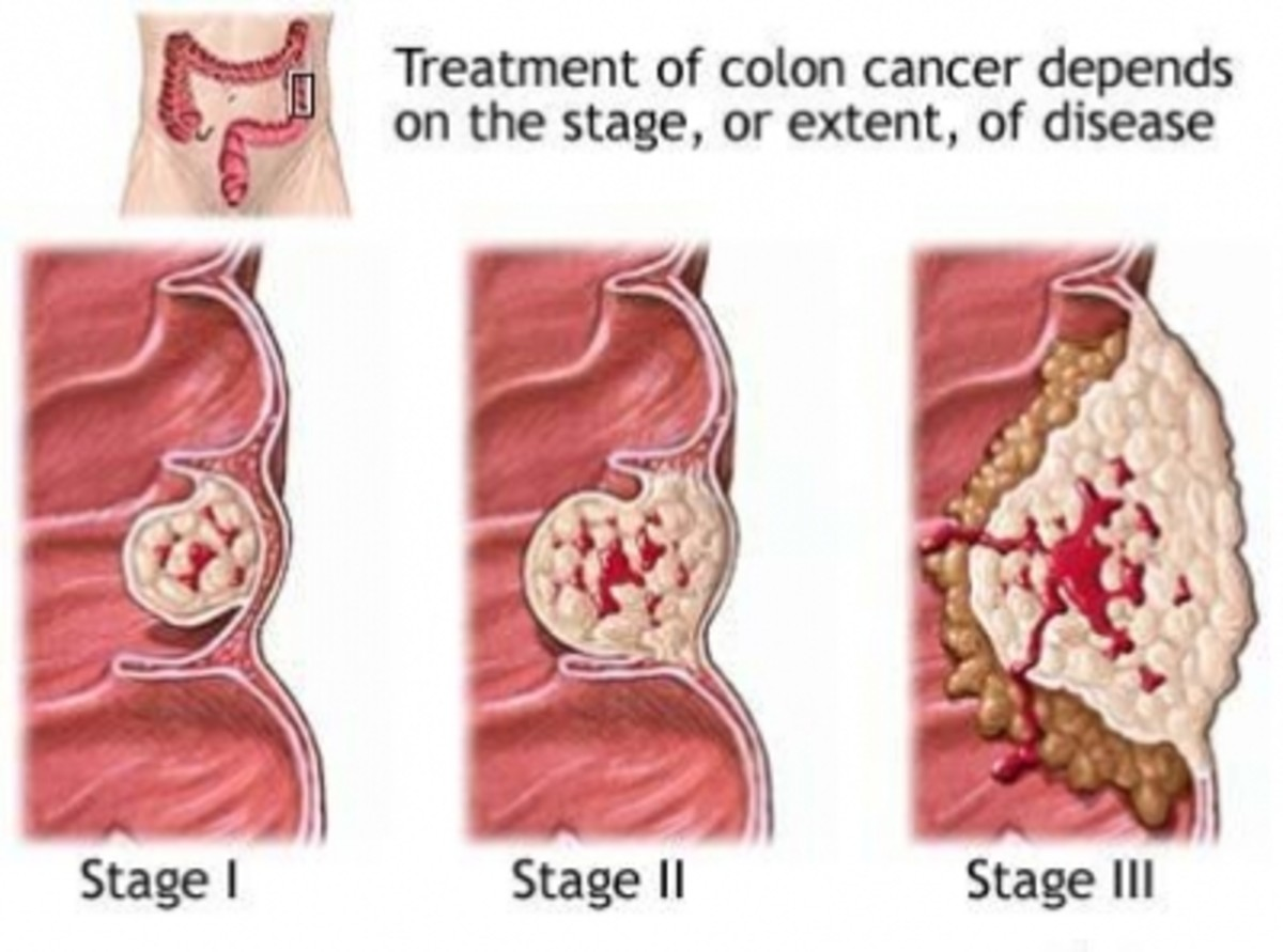colorectal-cancer-symptoms-and-treatments