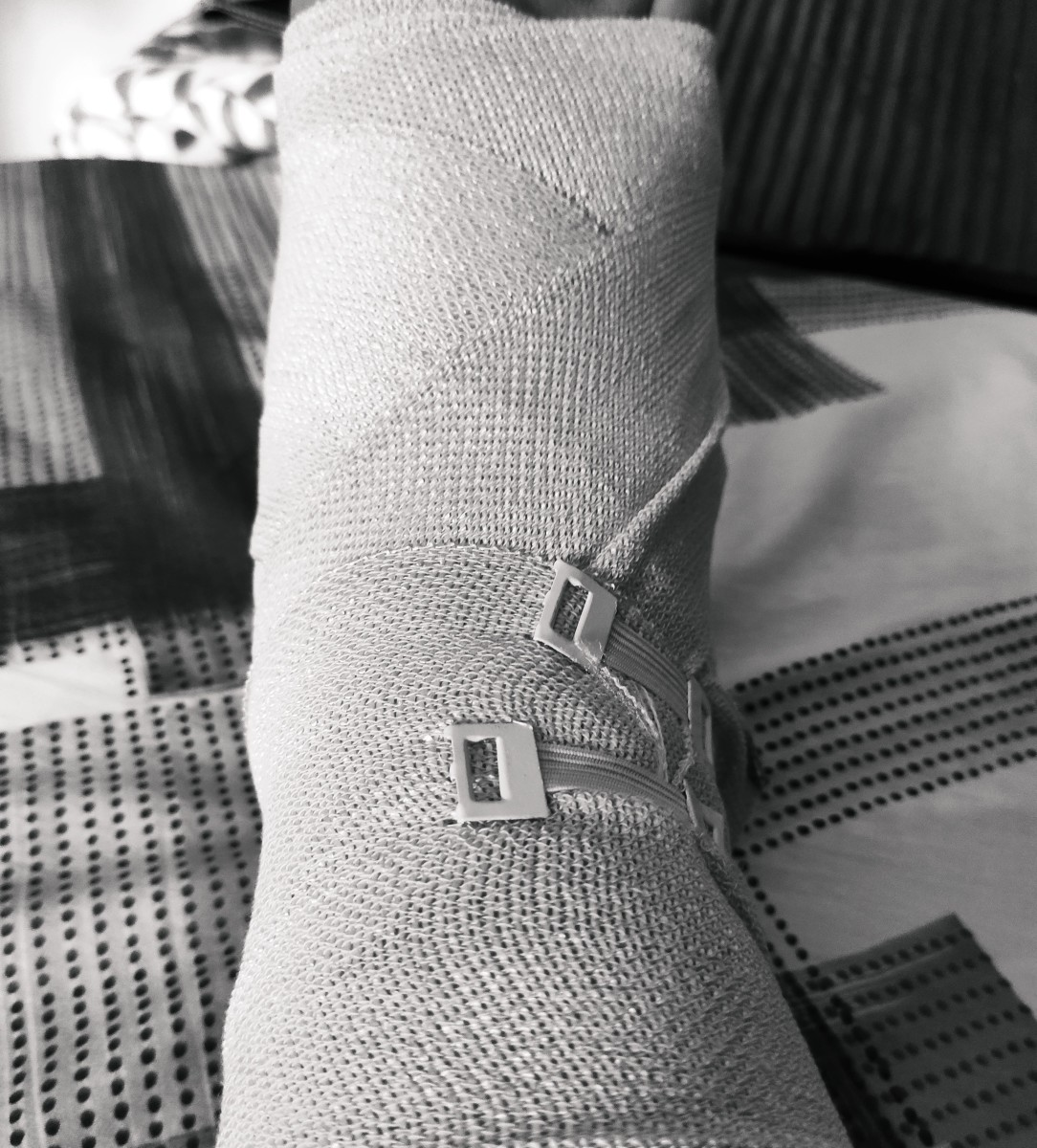 Injured foot with a 25kg Plate :) !!